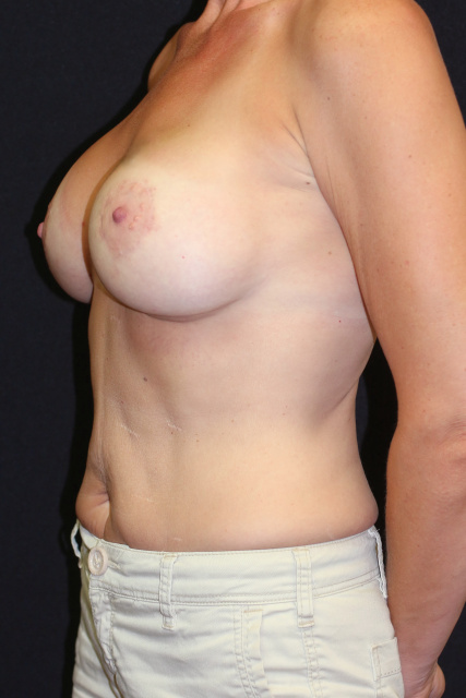 West Palm Beach Breast Augmentation - After Breast Revision West Palm Beach