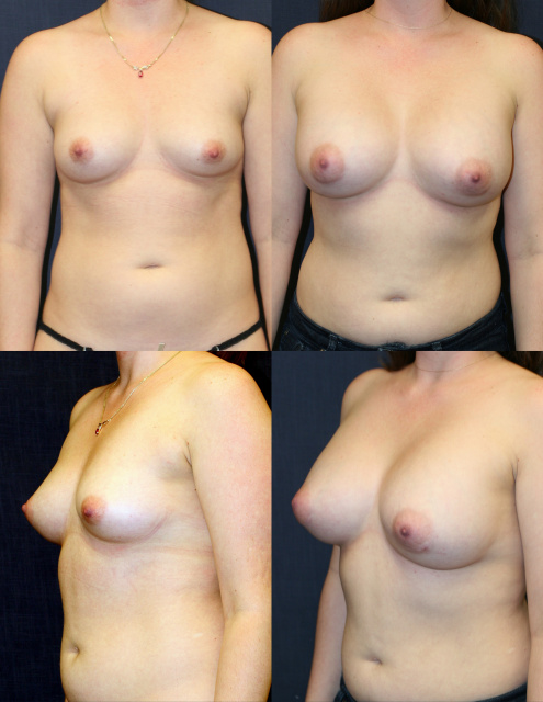 Saline Breast Implants West Palm Beach
