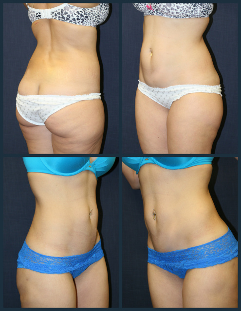 West Palm Beach Liposuction Saddle Bags - Before and after West Palm Beach Body Contouring