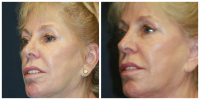 West Palm Beach Sculptra - Before and after Sculptra West Palm Beach