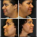 Neck Liposuction West Palm Beach
