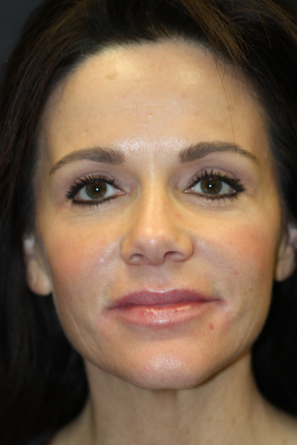West Palm Beach Eyelids Surgery - After Blepharoplasty West Palm Beach
