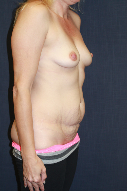 Mini Tummy Tuck West Palm Beach - Before Abdominoplasty West Palm Beach