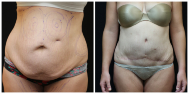 West Palm Beach Abdominoplasty - Before and After Tummy Tuck West Palm Beach
