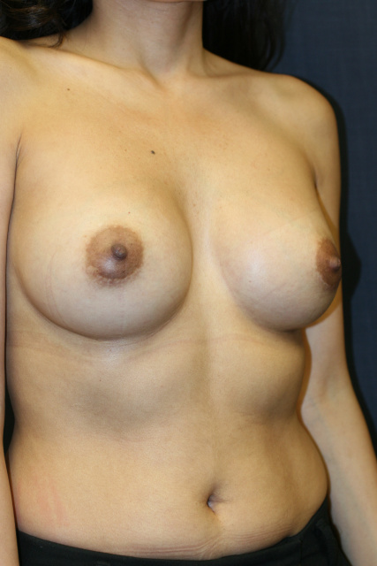 West Palm Beach Breast Enlargement - After Breast Augmentation West Palm Beach