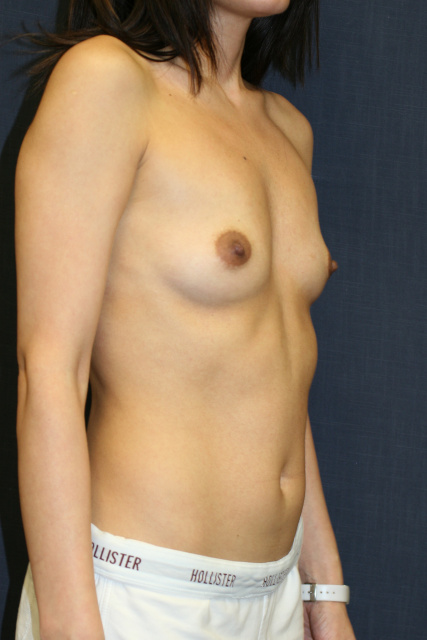 West Palm Beach Breast Enlargement - Before West Palm Beach Breast Augmentation