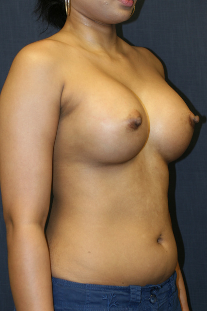 West Palm Beach Breast Augmentation - After Breast Implants