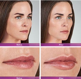 West Palm Beach Lip Augmentation - Before and After Lip Augmentation West Palm Beach - West Palm Beach Lip Augmentation - Before and After Lip Augmentation West Palm Beach - Before and after West Palm Beach Lip Injections