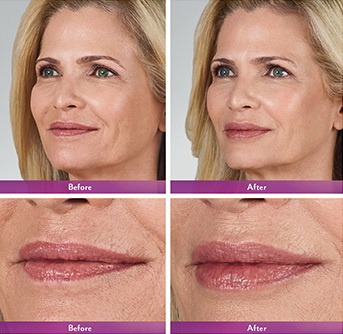 West Palm Beach Lip Augmentation - Before and After Lip Augmentation West Palm Beach - Before and after West Palm Beach Lip Enhancement