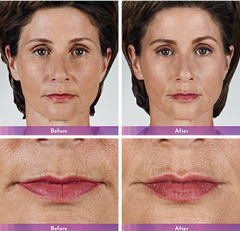 West Palm Beach Lip Augmentation - Before and After Lip Augmentation West Palm Beach - Before and after West Palm Beach Lip Fillers