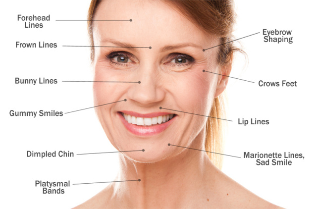 West Palm Beach Botox - Possible Areas to Treat With Botox