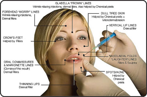 West Palm Beach Botox - Combinations with other treatments.