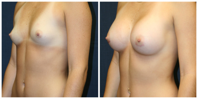 West Palm Beach Mentor Breast Implants - Before and After Mentor Breast Implants West Palm Beach