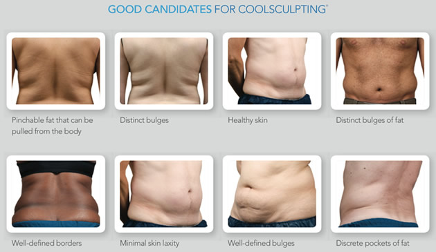 West Palm Beach Coolsculpting - Good Candidates Coolscupting West Palm Beach