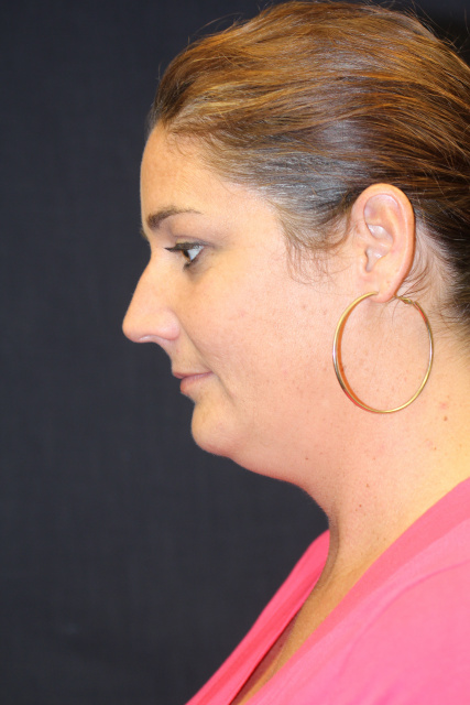 Chin Liposuction West Palm Beach - Before Body Contouring