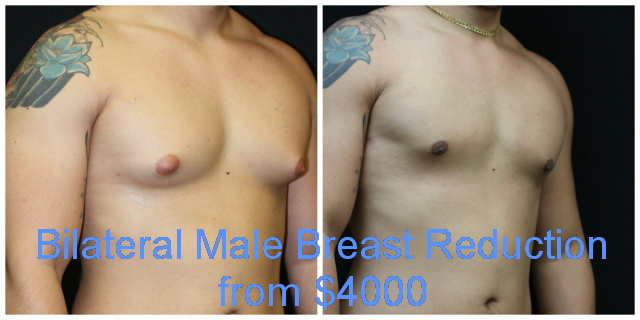 West Palm Beach Male Breast Reduction - Before and after Gynecomastia West Palm Beach