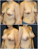 Periareolar Breast Lift West Palm Beach