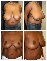 West Palm Beach Breast Reduction