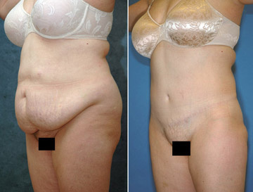 West Palm Beach Tummy Tuck