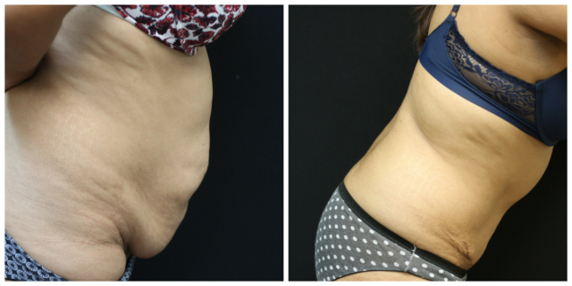 Palm Beach Tummy Tuck - Before and After Abdominoplasty Palm Beach