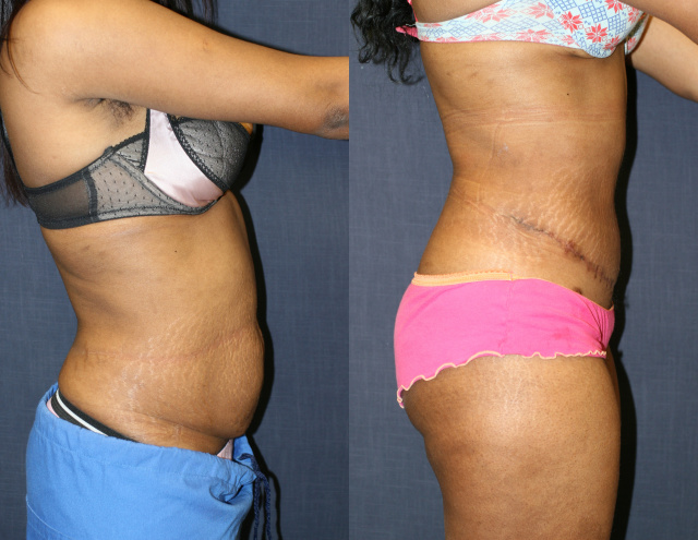 Tummy Tuck West Palm Beach