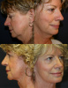 Secondary Facelift Before and After