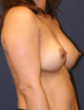 Before Breast Implant Exchange for 38 year old