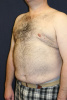 Post Male Breast Reduction in West Palm Beach