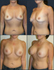 Breast Implants - Post Weight Loss