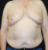 59 year old man suffering from gynecomastia