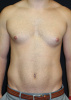 28 year old male with Gynecomastia