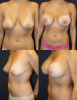 West Palm Beach Breast Lift and Augmentation