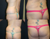 Brazilian Butt Lift with breast augmentation