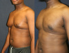 Gynecomastia with Liposuction and Direct Excision