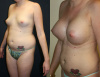 Breast Implants West Palm Beach - Mommy Makeover