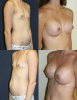 Breast Implants - 1 month post op