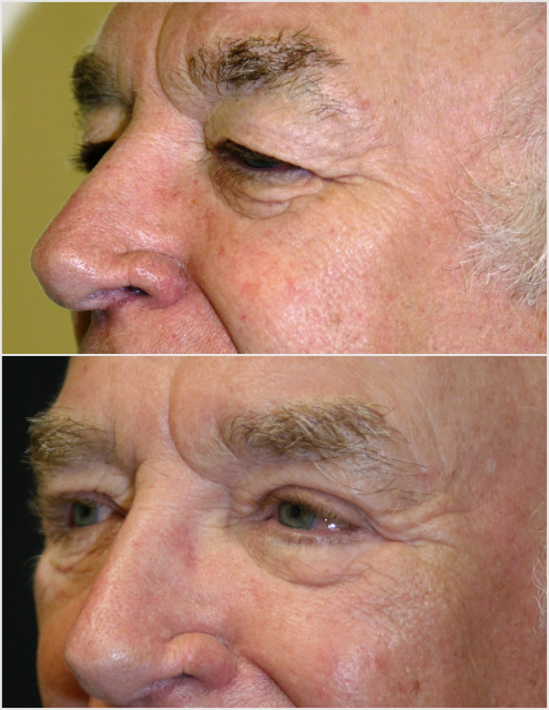 Male Blepharoplasty West Palm Beach