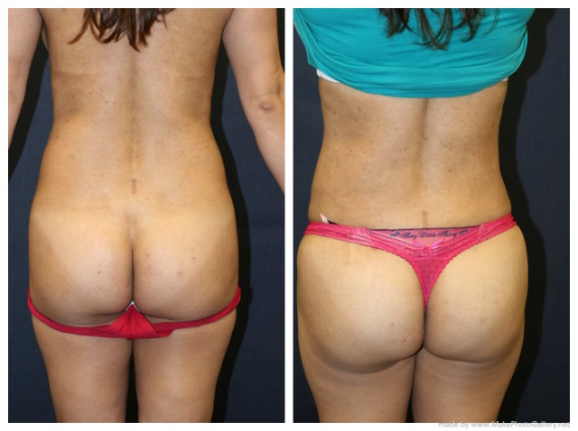 West Palm Beach Brazilian Butt Lift - Before and After Brazilian Butt Lift Palm Beach