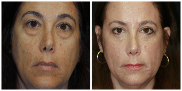 Palm Beach Eyelids Surgery - Before and After Blepharoplasty Palm Beach