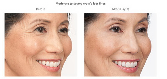 West Palm Beach Botox - Before and After Botox West Palm Beach