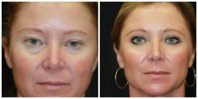 West Palm Beach Botox - Before and After West Palm Beach Botox