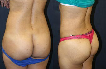 Brazilian Butt Lift West Palm Beach - Before and After West Palm Beach Butt Augmentation