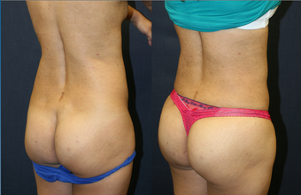 West Palm Beach Brazilian Butt Lift - Before and after West Palm Beach Butt Augmentation