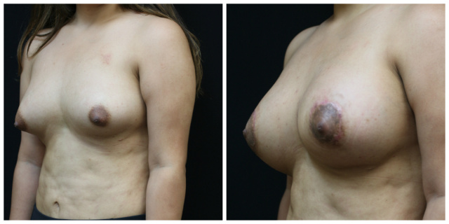 West Palm Beach Mastopexy - Before and After Breast Lift West Palm Beach