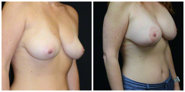 West Palm Beach Breast Augmentation - Before and After West Palm Beach Breast Implants