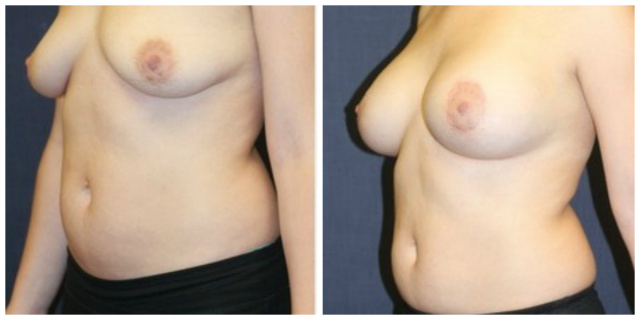 West Palm Beach Breast Implants - Before and After Breast Implants Natrelle 397 cc Silicone