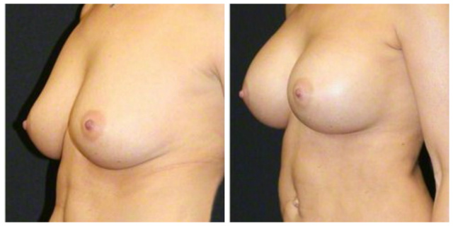 West Palm Beach Breast Augmentaition - Before and After Breast Implants West Palm Beach
