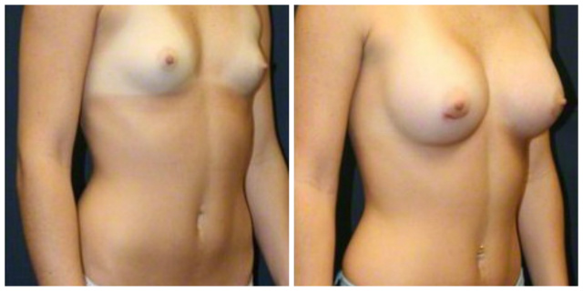 Breast Augmentation West Palm Beach - Before and After West Palm Beach Breast Implants
