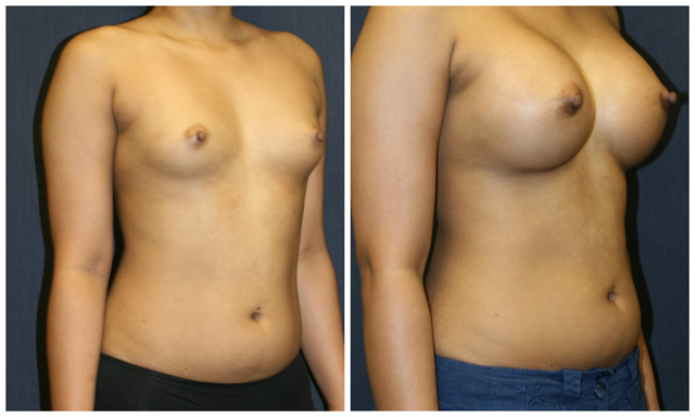 West Palm Beach Breast Implants - Before and after Breast Implants