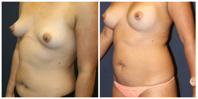 Breast Implants West Palm Beach - Before and after West Palm Beach Saline Breast Implants